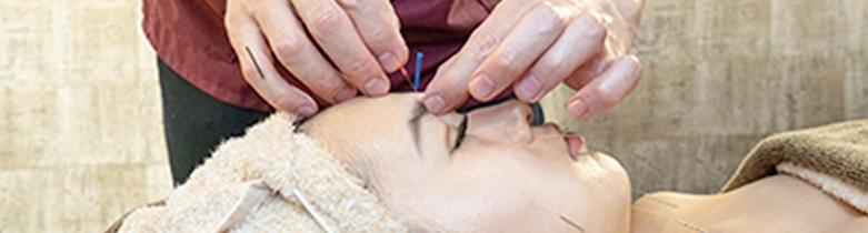 美容鍼施術の様子